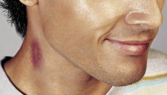 Смертельний поцілунок: юнак помер після проведеної ночі з дівчиною