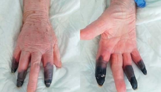 Довелося ампутувати пальці: в Італії зафіксували тяжкий випадок COVID-19