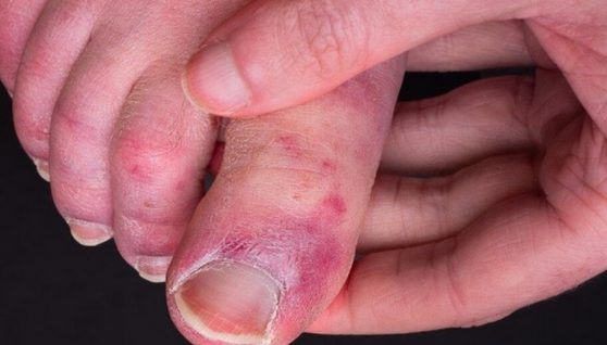 """""""Ковідні пальці"""": вчені розповіли про рідкісний побічний ефект"""